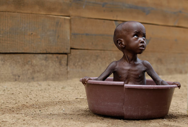 Help with Starvation in Somalia